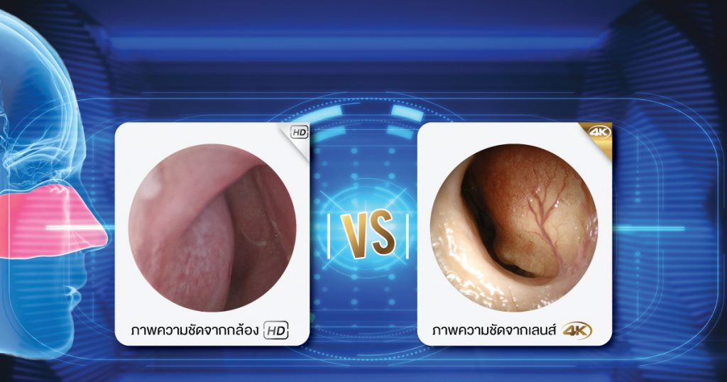 4K Surgical Camera Technology for Sinusitis
